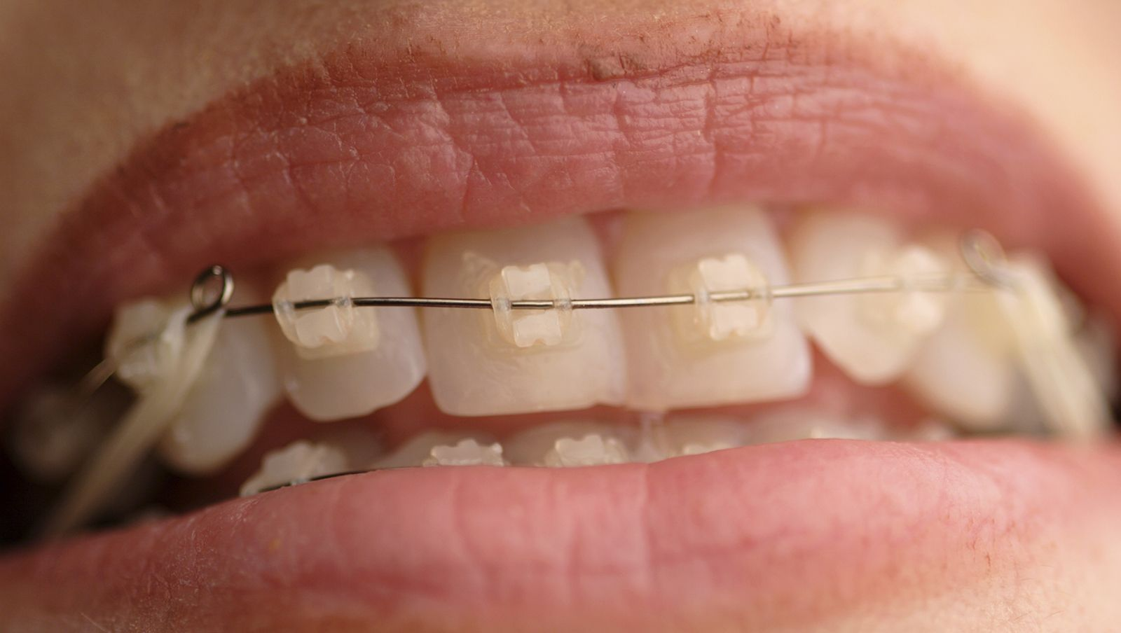 Ortodoncia de auto ligado