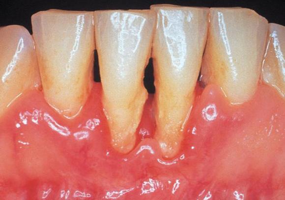 ¿Por que tengo mis encias más hacia abajo y una superficie amarilla sobre el cuello de mis dientes dura que no puedo quitar?